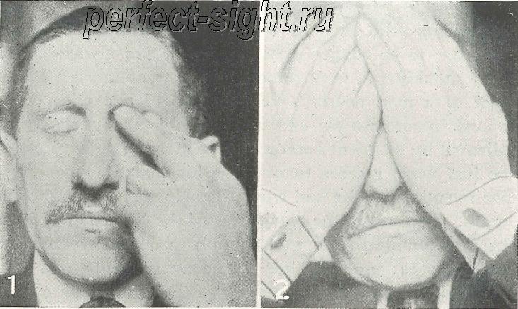 Гимнастика для глаз для восстановления зрения по жданову