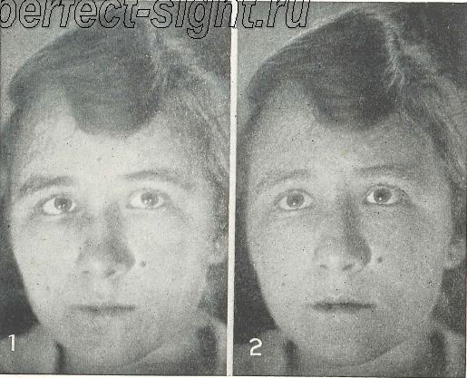 Стоимость лазерной коррекции зрения в киеве